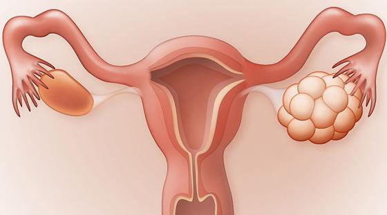Best PCOD Treatment in Hyderabad | Lush Fertility